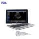 Laptop Ultrasound Scanner: SIFULTRAS-9.1, FDA main pic