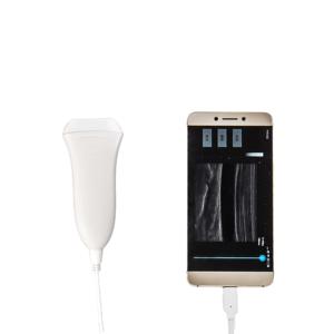 Portable Linear Ultrasound Machine: SIFULTRAS-9.5 model