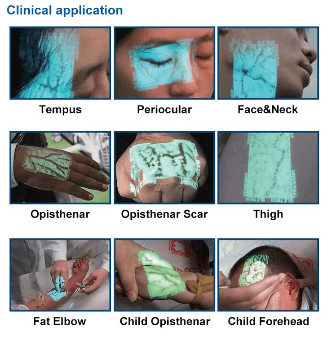 Handheld Infrared Vein Finder SIFVEIN-4.2 Portable Vein Viewer clinical application