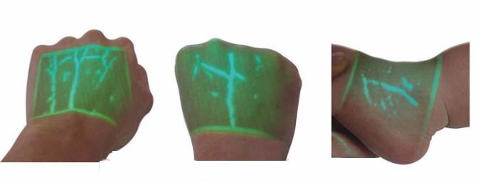 Infrared Vein Finder - SIFVEIN-4.7 green light
