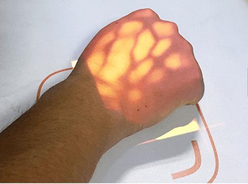 Desk Type Infrared Vein Finder SIFVEIN-4.10 red light