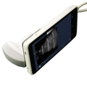 WiFi Convex Color Ultrasound Scanner SIFULTRAS-2.2