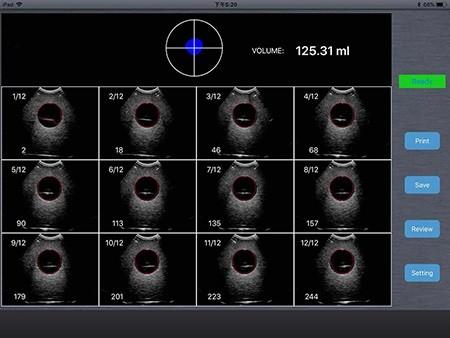 Wireless Bladder Ultrasound Scanner 4D array scan SIFULTRAS-5.5 Bladder 4d scanner