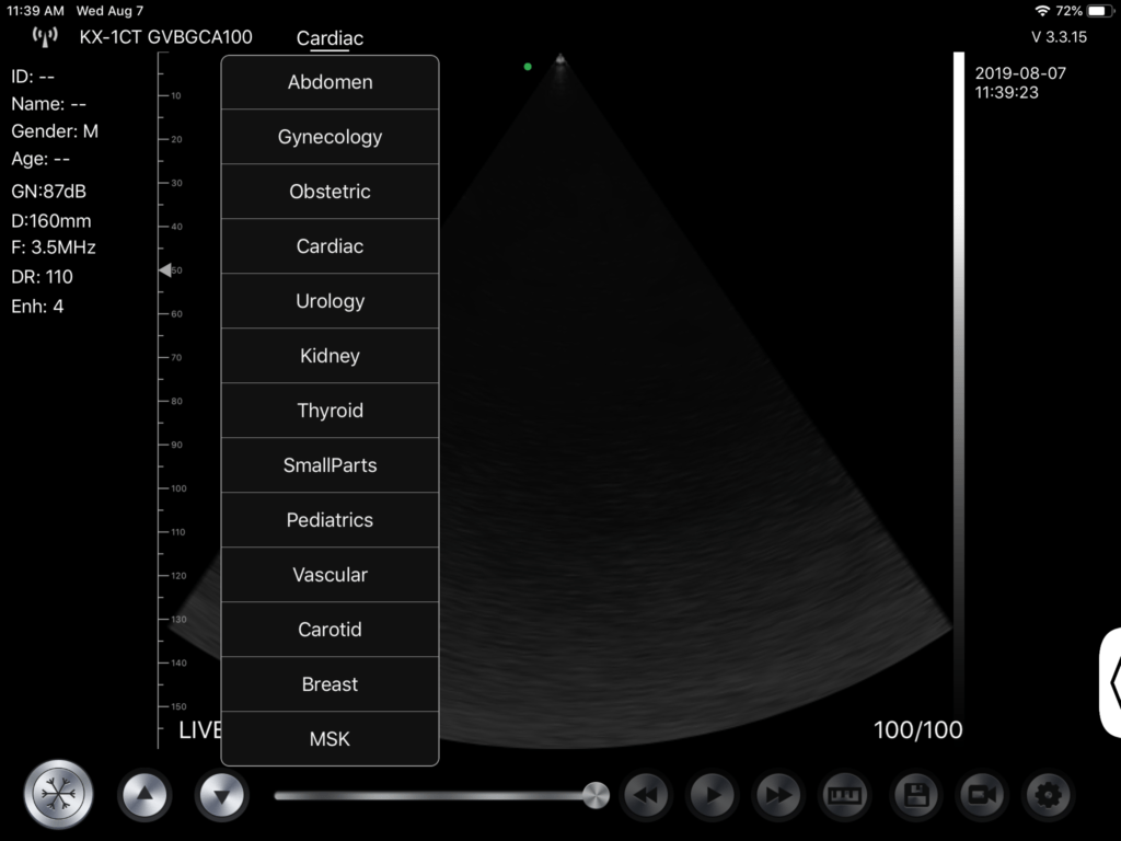Wireless 3 in 1 Ultrasound Scanner SIFULTRAS-3.3 Triple Headed: Convex, Linear and Cardiac Probe Applications
