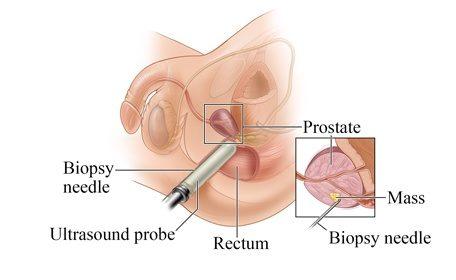 Transrectal Prostate - SIFSOF