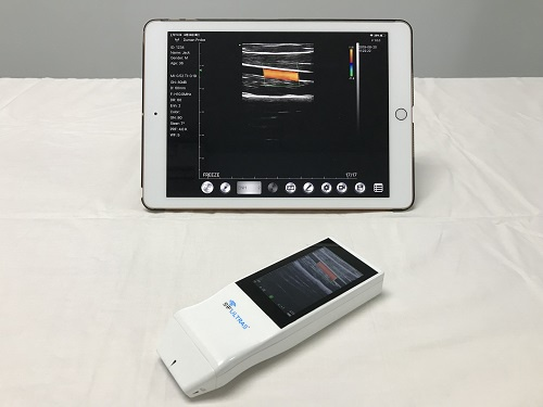 Built-in Screen Linear Ultrasound Scanner SIFULTRAS-5.14 Exterior Screen Compatible