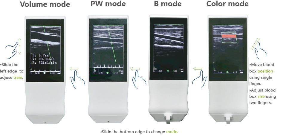 Built-in Screen Linear Ultrasound Scanner SIFULTRAS-5.14  PW Bmode Color Doppler