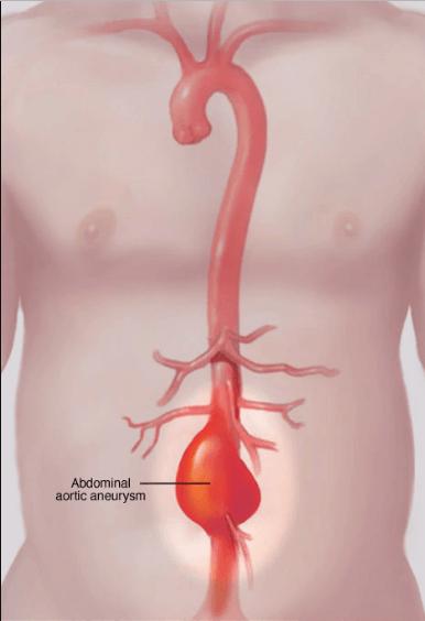 abdominal aortic aneurysm Scheme