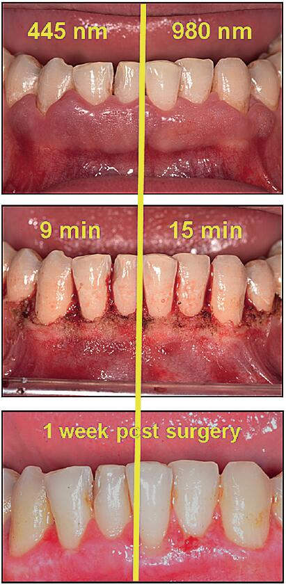 Dentistry Diode Laser System SIFLASER-4.0 Applications