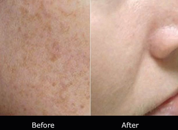 Surgery Diode Laser System SIFLASER-2.1 Coarse Pores Laser Treatment