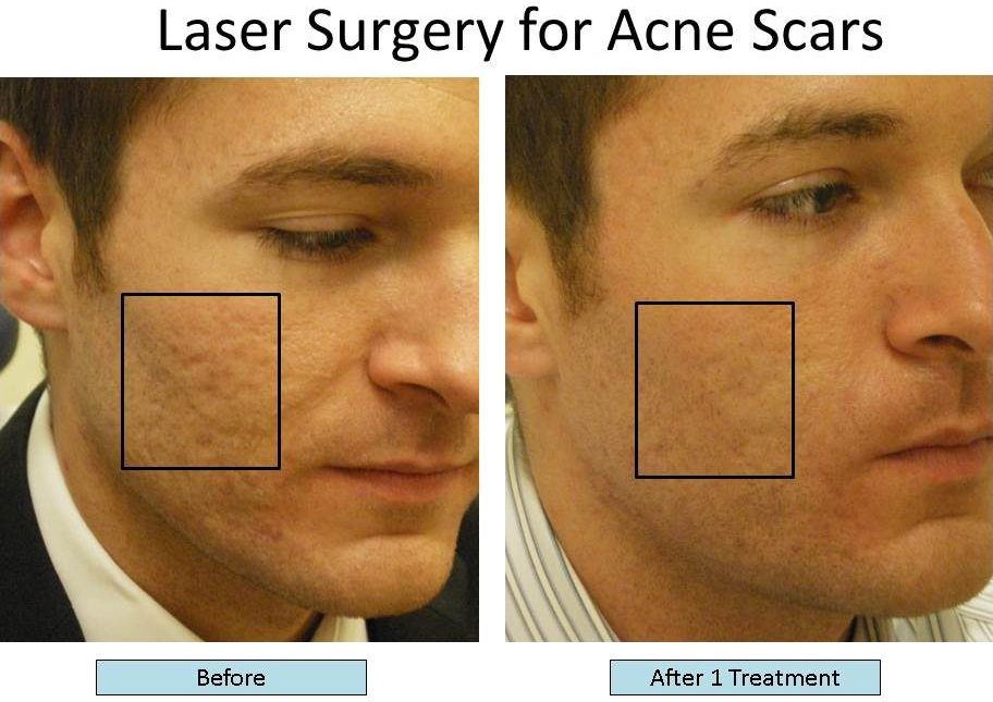 Surgery Diode Laser System SIFLASER-2.1 Acne Scars Treatment