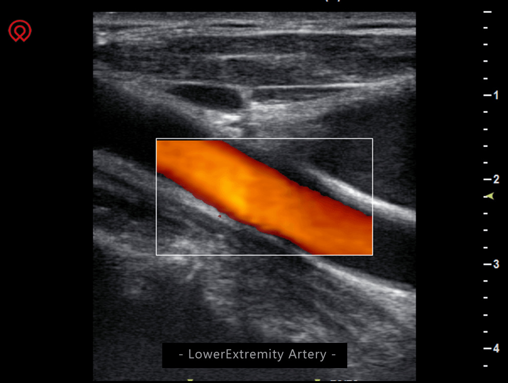 Multi-Head 13 Inch Screen Ultrasound Scanner SIFULTRAS-4.8 Lower Extremety Artery Scan