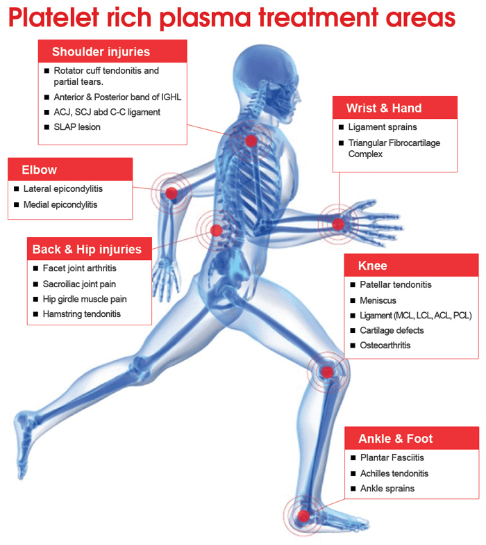 PRP Treatment Areas