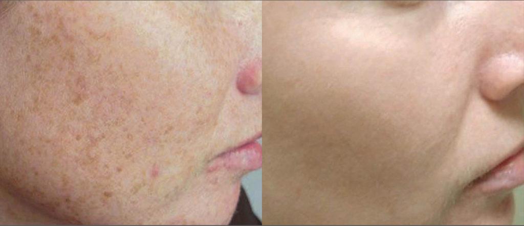 Surgery Diode Laser System SIFLASER-2.1 Rough Skin Laser Treatment