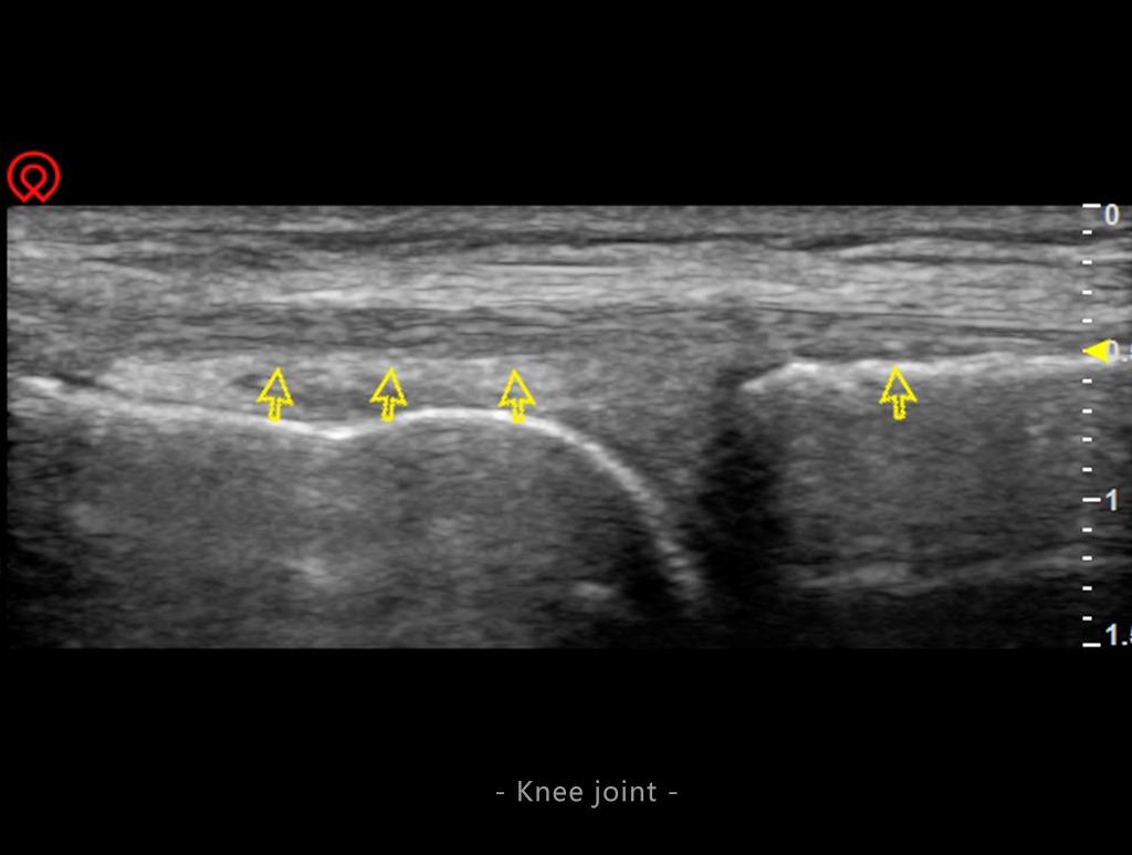 Multi-Head 13 Inch Screen Ultrasound Scanner SIFULTRAS-4.8 Knee Joint Scan