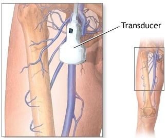 Venous Ultrasound Scheme