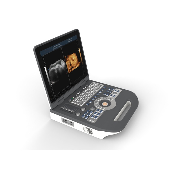 Color Doppler Convex Diagnostic Ultrasound Scanner SIFULTRAS-8.3