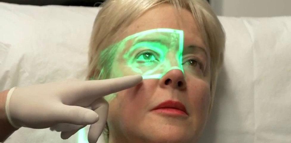 Dermal Fillers Injection (DFI)