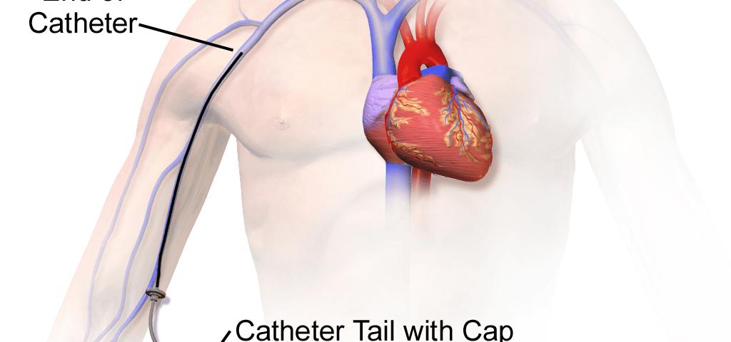 Midline Catheter Insertion