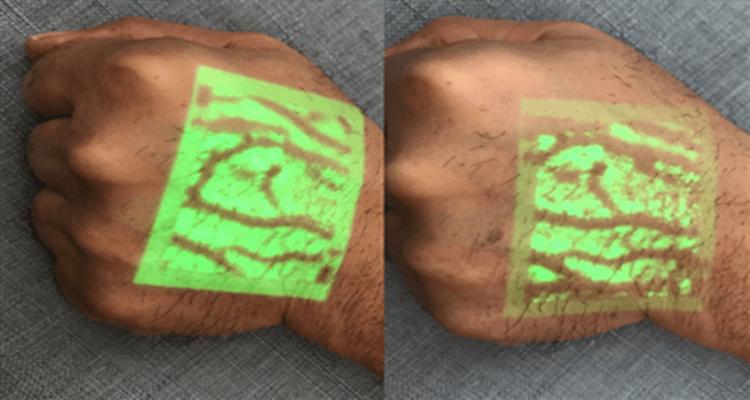 Vein Finder SIFVEIN-6.0 With Trolley green light