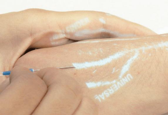 Handheld Near-Infrared Vein Finder SIFVEIN-7.1 VENIPUNCTURE