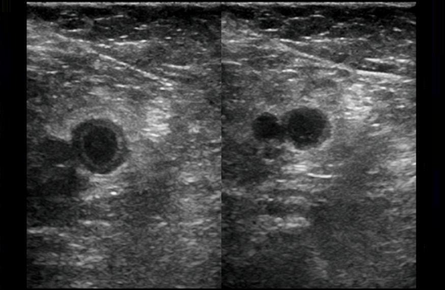 DVT ultrasonography