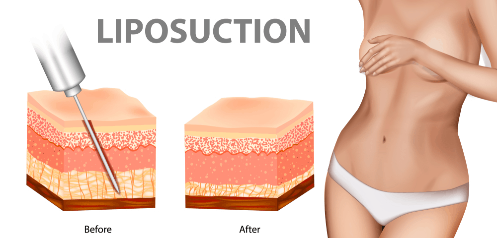 Ultrasound guided Liposuction