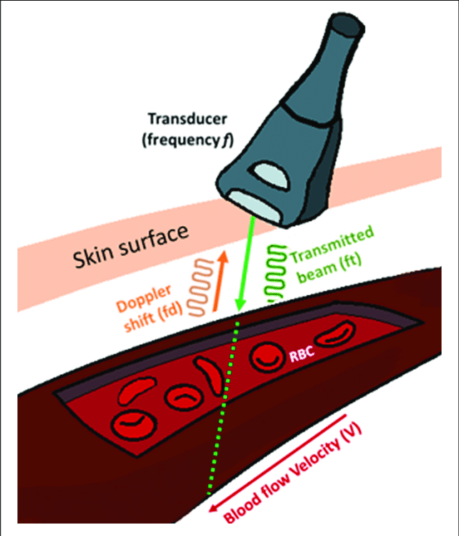 Speed and Direction of Blood Flow through the Vessel Ultrasound