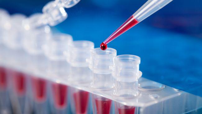 Blood sample test SIFVEIN