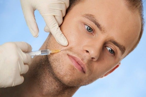 Nasolabial injections using SIFVEIN