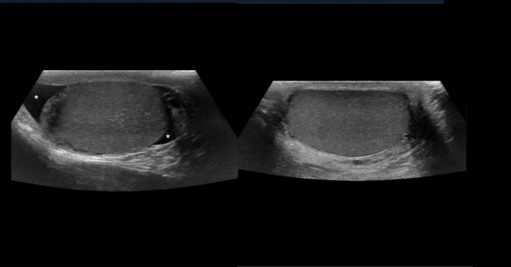 Scrotal ultrasound