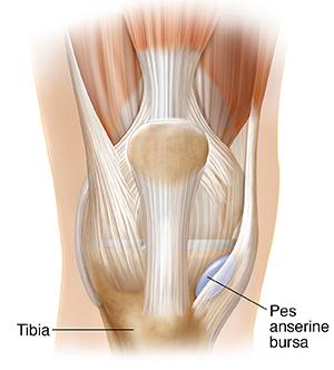 Ultrasound-Guided Anserine bursa