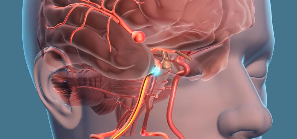 Aneurysm high blood pressure monitoring telehealth SIFSOF SIFTELEHEALTH pack