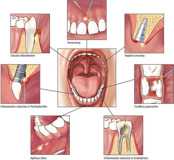 Laser use in Dentistry