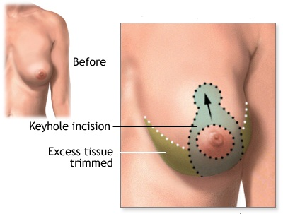 Ultrasound-guided Breast Lifting