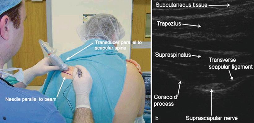 ultrasound guided suprascapular nerve block