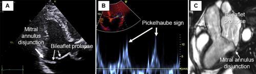 Perioperative Echocardiographic Assessment of Mitral Valve Regurgitation